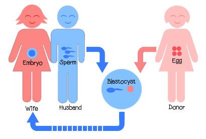 http://www.rawalfertility.com/wp-content/uploads/2019/03/donor-egg.jpg