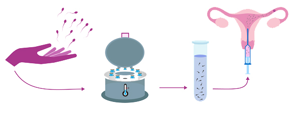 http://www.rawalfertility.com/wp-content/uploads/2019/03/donor-sperm.jpg