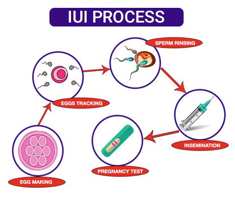 http://www.rawalfertility.com/wp-content/uploads/2019/03/iui-process.jpg